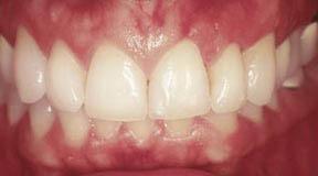 South Elgin, IL Dentist
