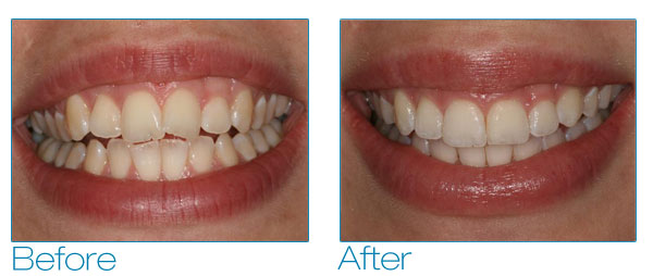 Invisalign Gallery General And Cosmetic Dentist